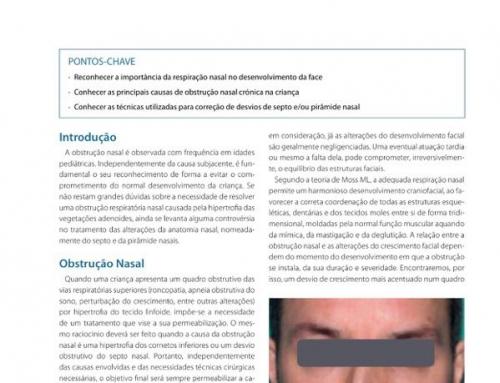 Septorrinoplastia na criança